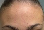 points-blancs-visage-peausophieamorinpoints-blancs-visage-peauacne3550px-Remove-Blackheads-Step-23-Version-2bird-bath1egg-white-face-mask-for-oily-skin
